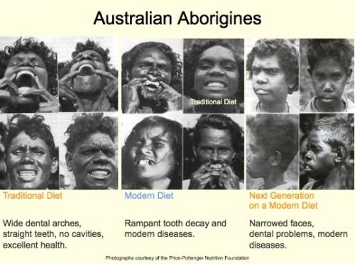 aborigeni-australiani-prima-dopo-dieta-occidentale