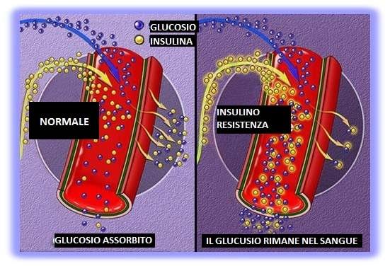 diabete-Insulino-Resistenza