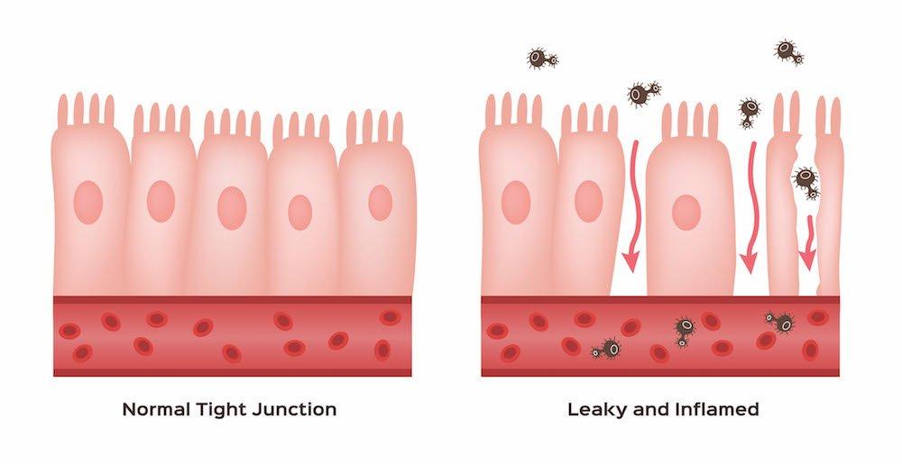 intestino-permeabile-leaky-gut